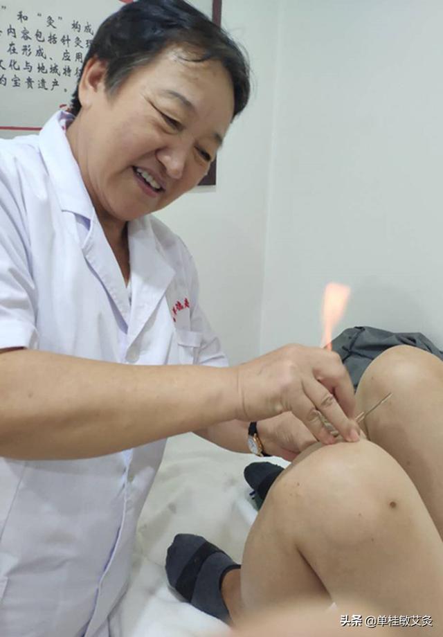 针灸治什么病疗效最好?