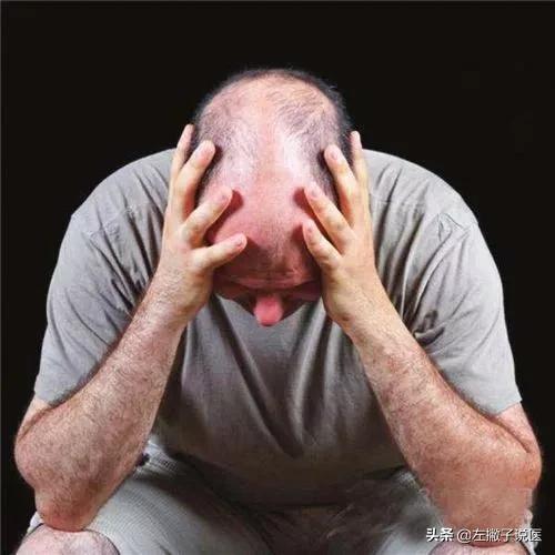 脱发惹人烦中药草图片大全,哪些中草药对治疗脱发有很好的效果?