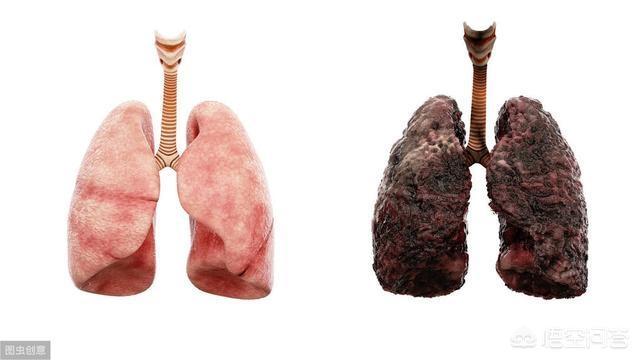 """肺癌,多是被""""气""""出来的,这里的""""气""""到底指的什么?"""