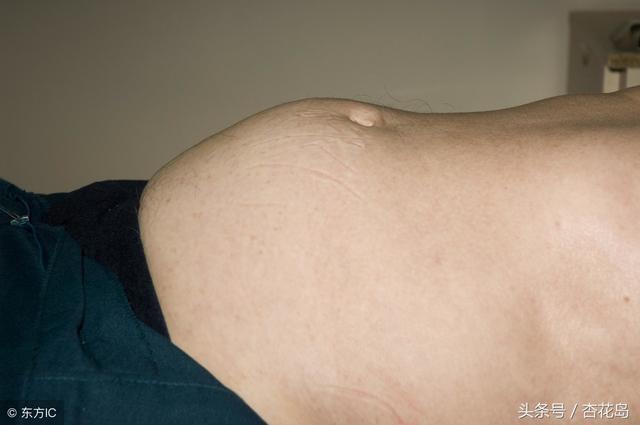 胃胀气的症状有哪些那些肉类具有行气理气功效?如何调理胃胀气?