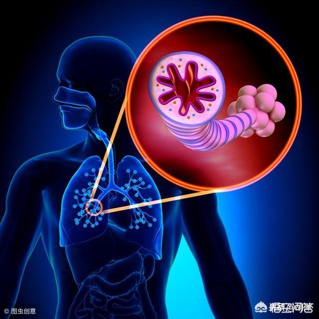 支气管扩张为什么反反复复发作?该怎么办?