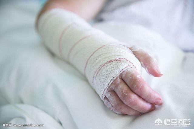 骨折了吃什么或喝什么对康复或伤口愈合有用骨折术后中药方剂?