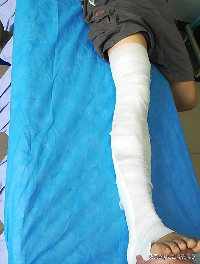 中医接骨七天痊愈是真的吗骨折术后中药方剂?