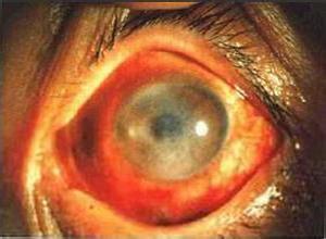 眼部带状孢疹拔罐,带状疱疹中医病名