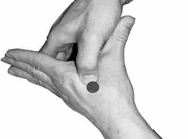 中医拔罐哪个穴位可治肾虚,膝盖拔罐穴位图