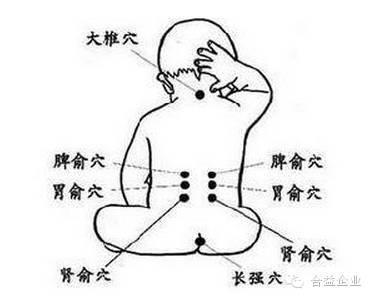 肚脐拔罐的作用,女性肚脐眼拔罐的功效