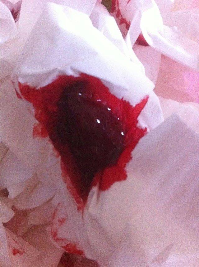 痔疮 上 刺血 拔罐,痔疮拔罐的位置图图解