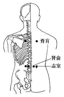 肚脐拔罐治荨麻疹的,宫寒拔罐的位置图片