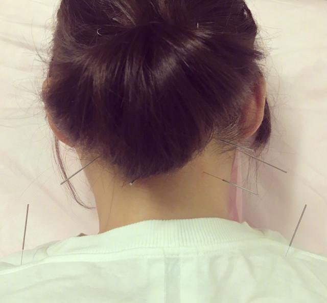 颈椎针灸后起床头晕,头疼针灸需要扎颈椎吗