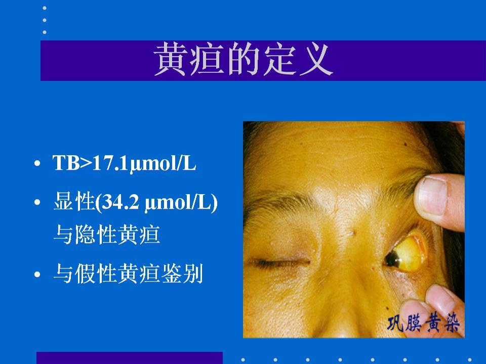 轻微黄疸的症状有哪些症状图片,自己在家怎么测黄疸