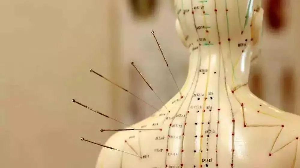 失眠针灸怎么调理,失眠头疼可以针灸吗