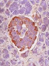 阴道癌有些什么症状,外阴癌最常见的5个症状