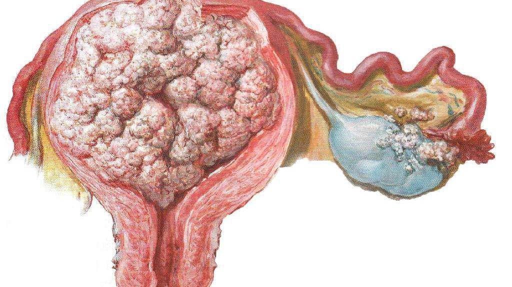 子宫糜烂的症状百科,宫颈糜烂2度能自愈吗