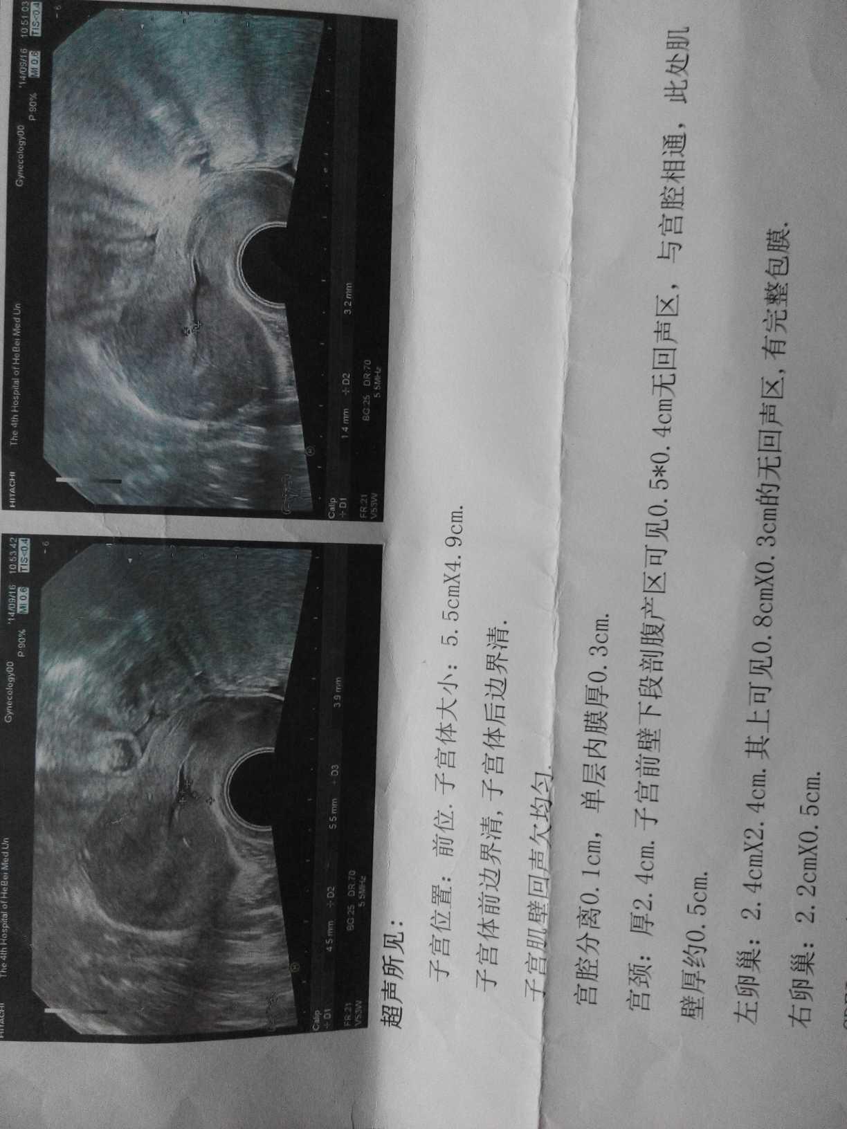 子宫憩室手术失败症状,子宫憩室手术成功的人