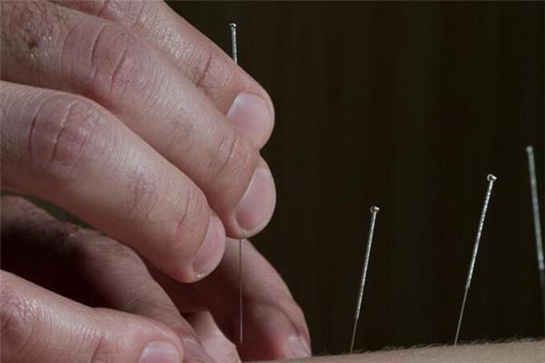 脚扭了可以针灸吗   痛不痛,针灸治疗脚扭伤案例