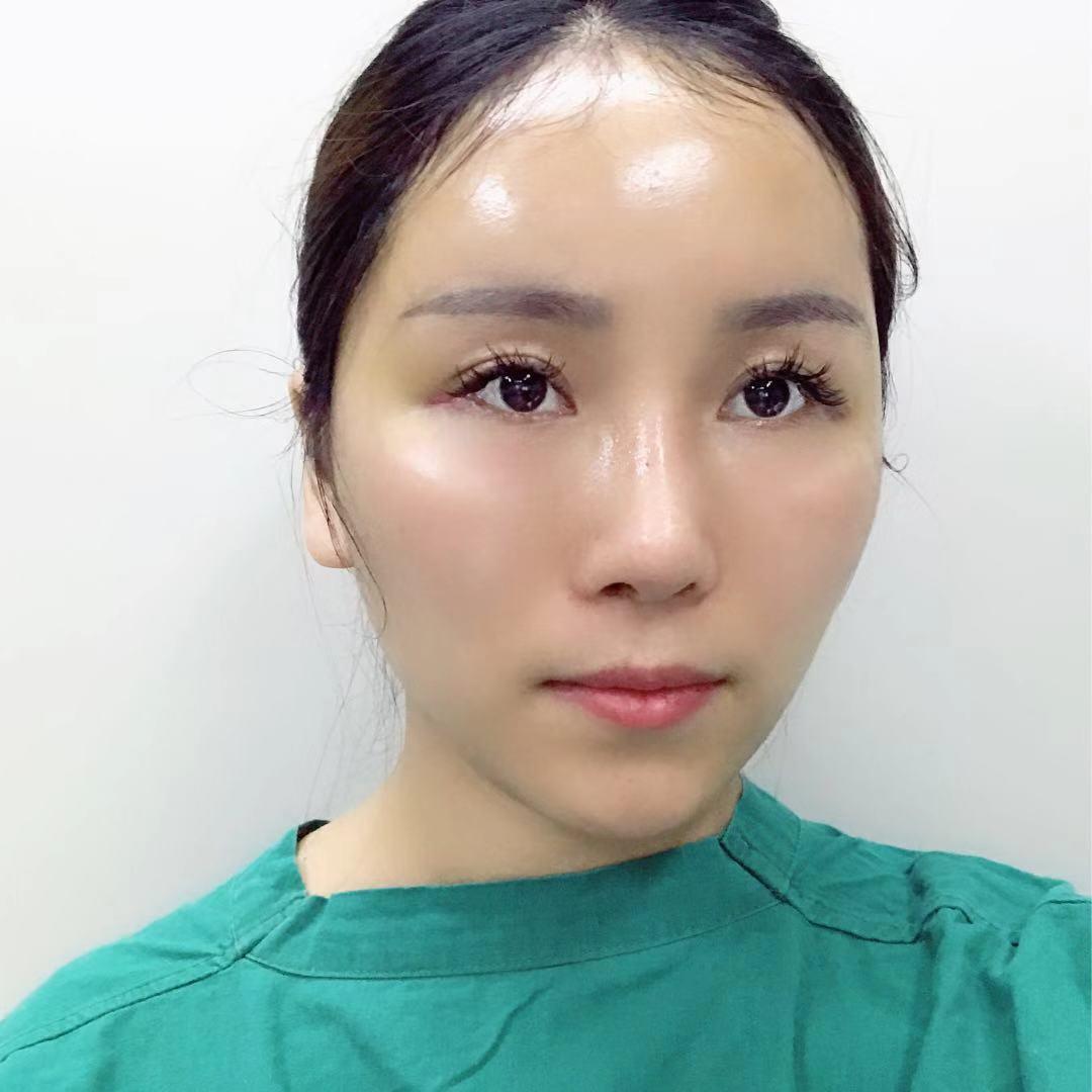 针灸后针眼变黑,为什么针灸后皮肤发黑