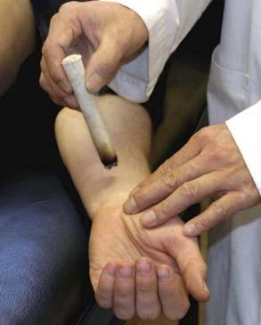 针灸治疗三叉神经痛,三叉神经针灸能治愈吗