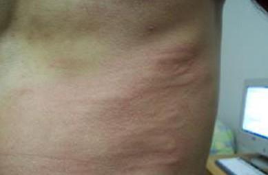 过敏性皮疹要注意哪些症状,皮疹的病因