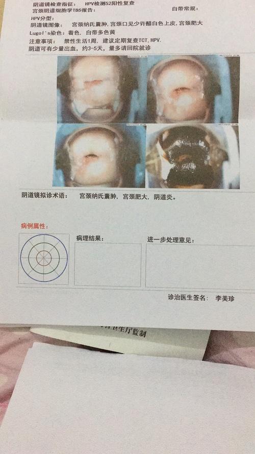 女性感染hpv52有何症状,hpv感染早期图片