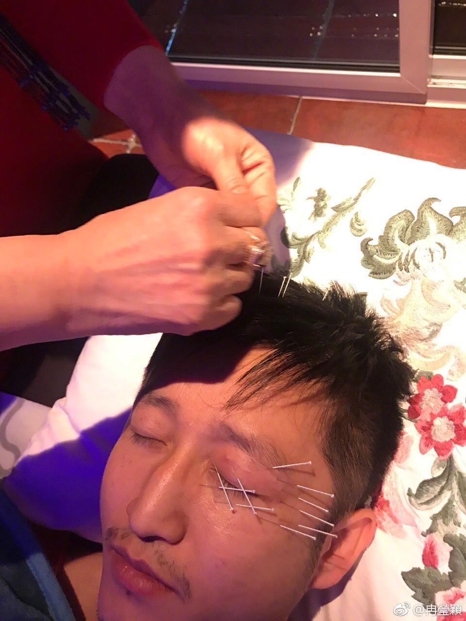 针灸扎坏脸用什么仪器能检查出来,针灸伤到神经的后遗症