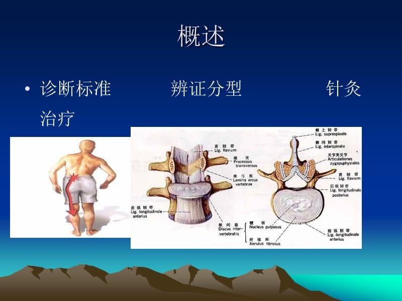 针灸对腰椎间盘膨出的作业,腰间盘突出针灸后更痛