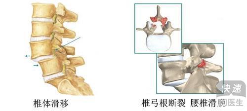 腰椎滑脱的常见症状,脊椎滑脱手术风险大吗
